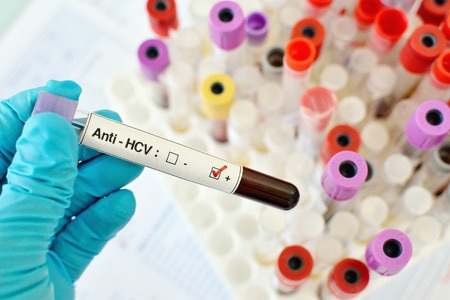 The Alphabet Soup of Virus Hepatitis: Hepatitis C